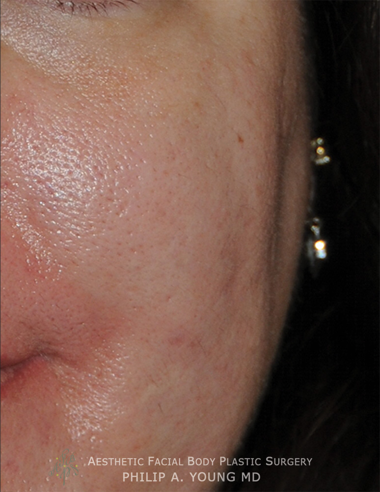 acne scar treatment for Rolling Scars, Box Car Scars After Left Cheek