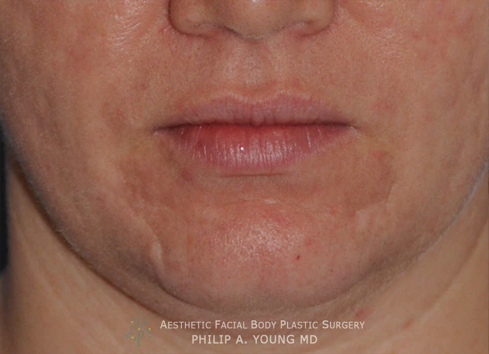 Acne Scar Treatment Before After Photos Seattle Bellevue