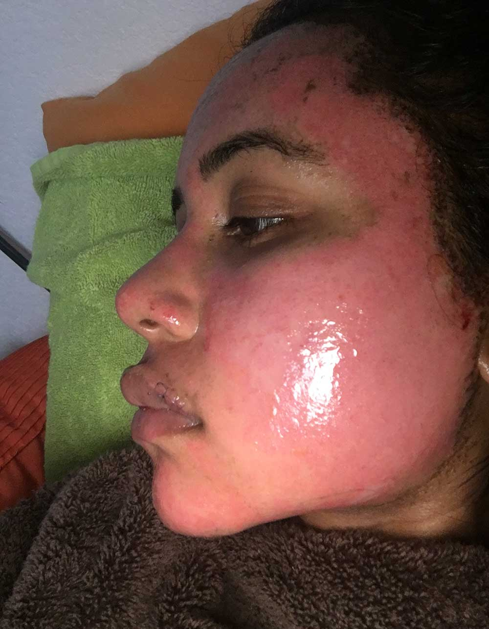 Acne Scar Vitalizer African American Treatment Healing Diary Post Procedure Day 2 Left Oblique