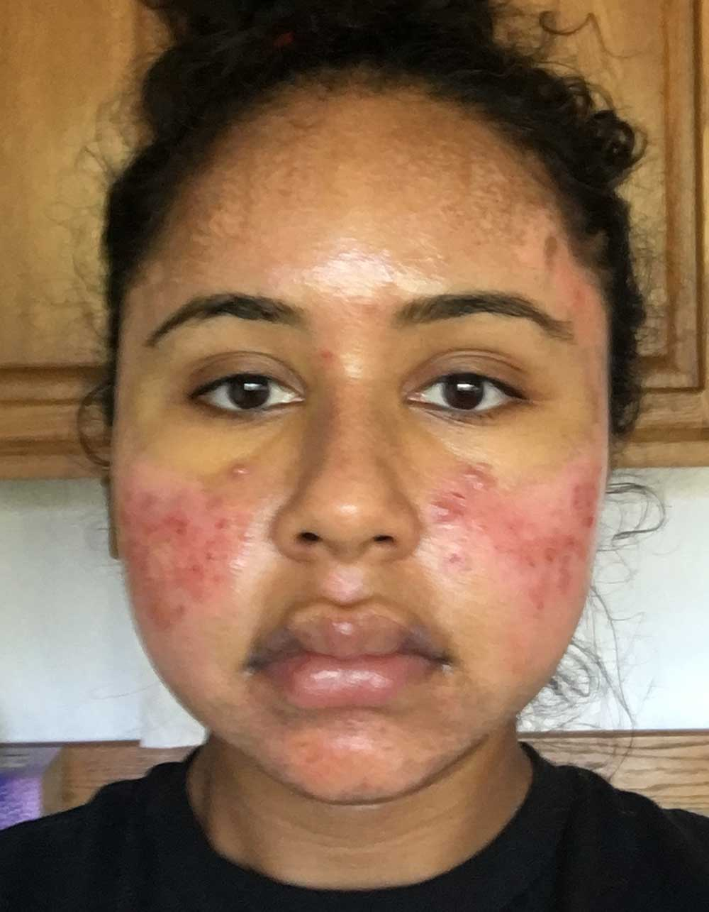Acne Scar Vitalizer African American Treatment Healing Diary Post Procedure Day 5