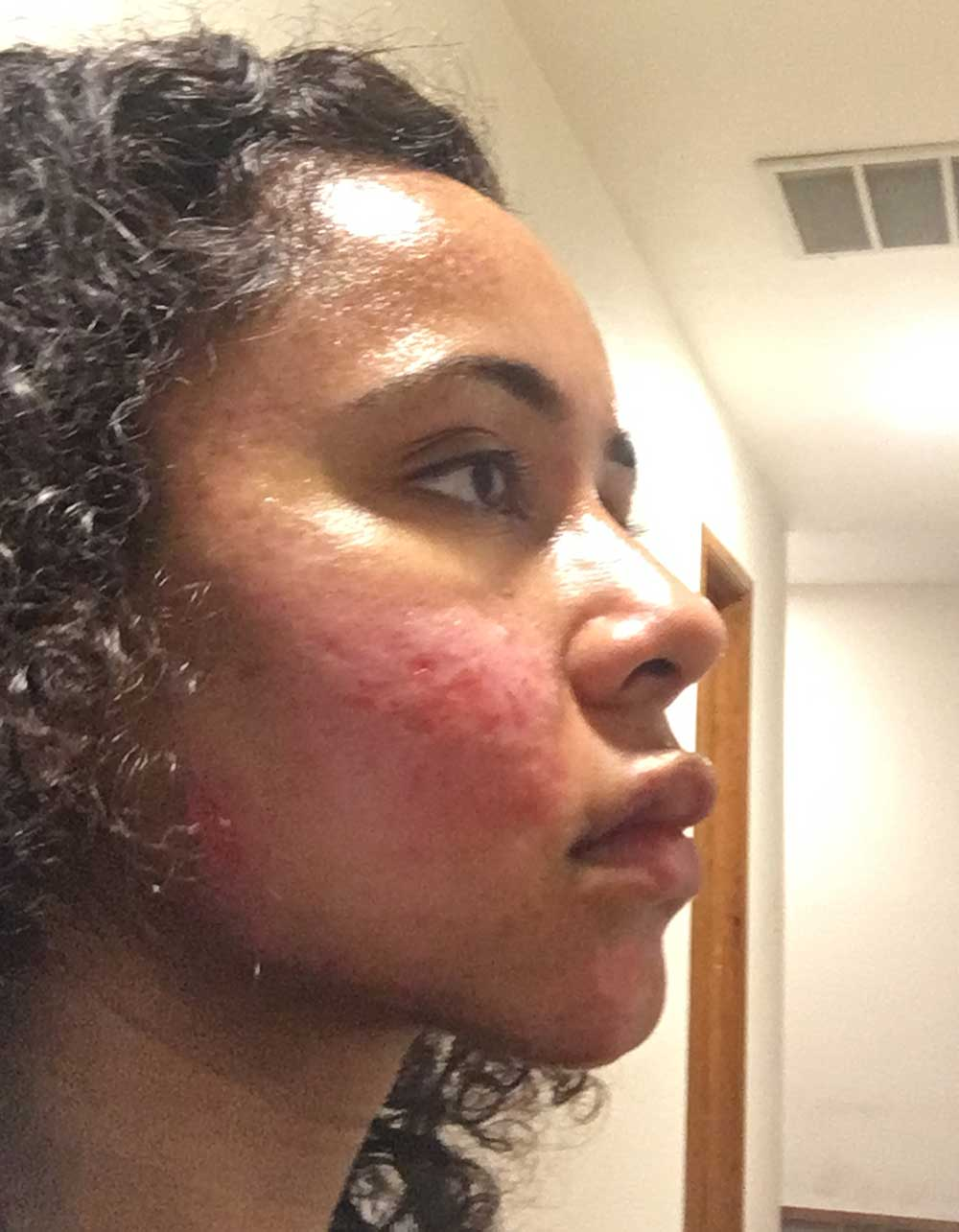 Acne Scar Vitalizer African American Treatment Healing Diary Post Procedure Day 6 Right Oblique