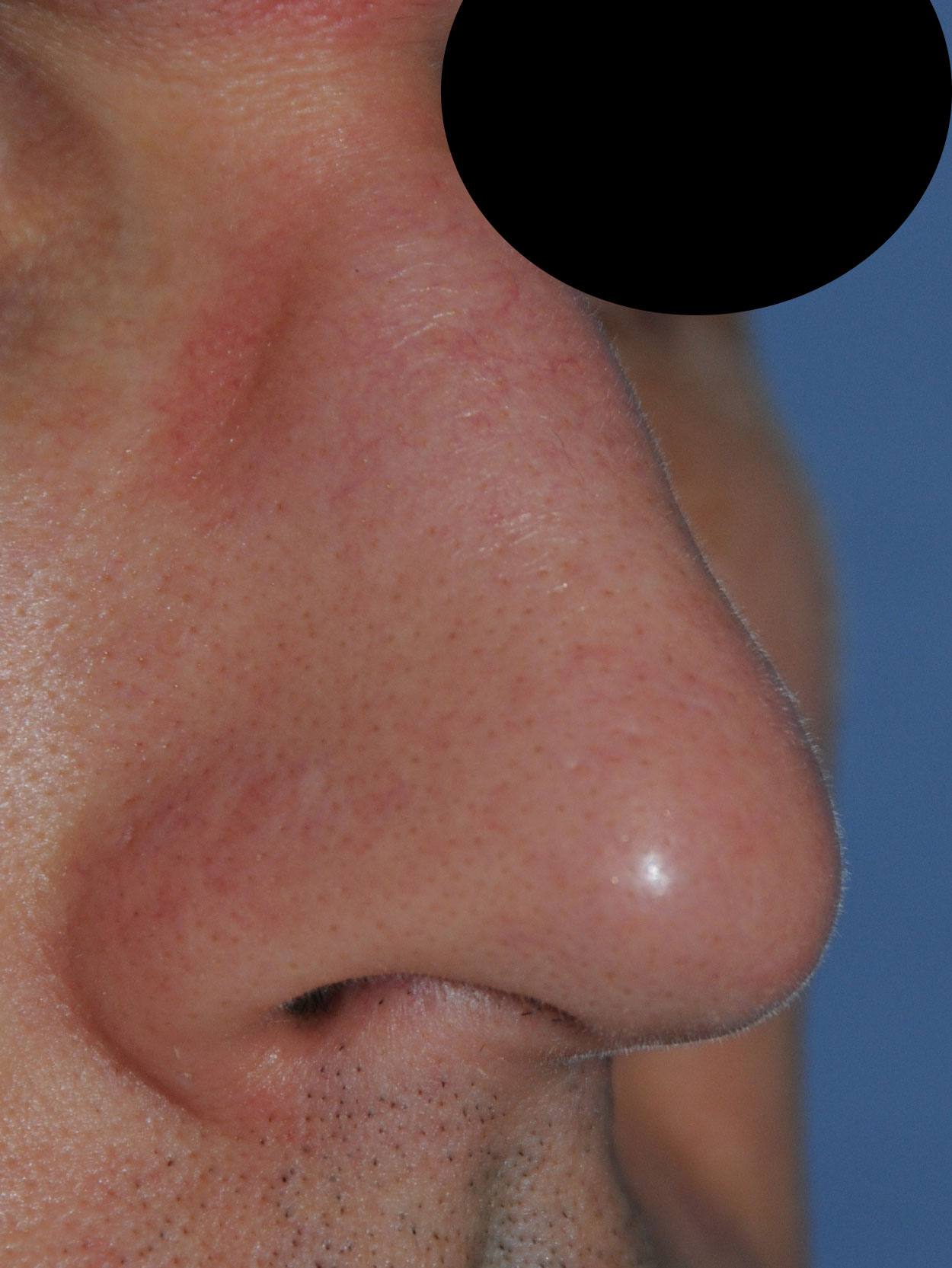 Oblique View After Laser Resurfacing, Dermabrasion to the nose to treat scars, red marks, to improve texture, tone and even the skin appearance for this 40's Caucasian Professional Male from Bellevue, Wa