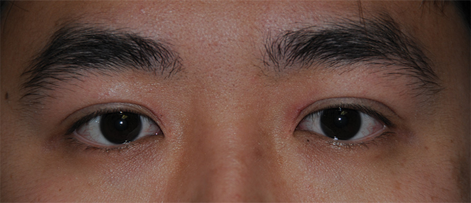 After Asian Double Eyelid Crease Formation Procedure for this Asian 20 Something Male from Eastern Washington