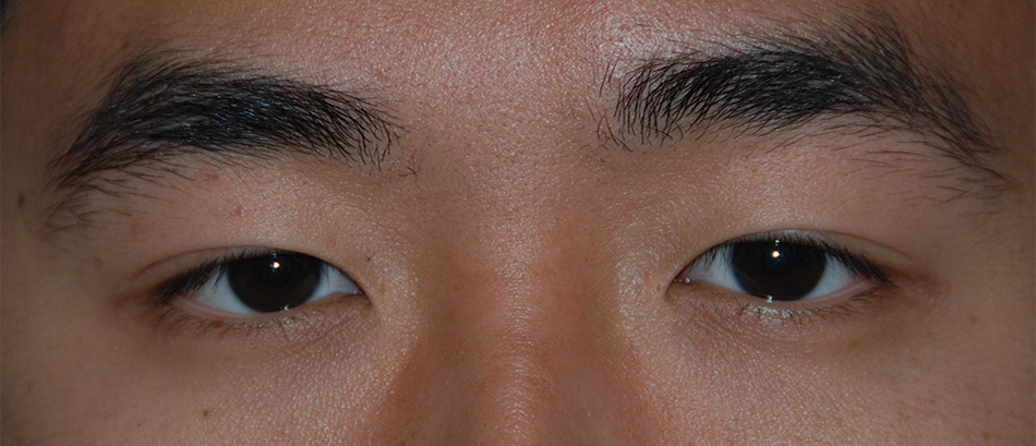 Before Asian Double Eyelid Crease Formation Procedure for this Asian 20 Something Male from Eastern Washington