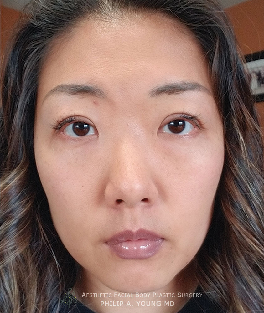 After Asian Double Eyelid Crease Formation Surgery