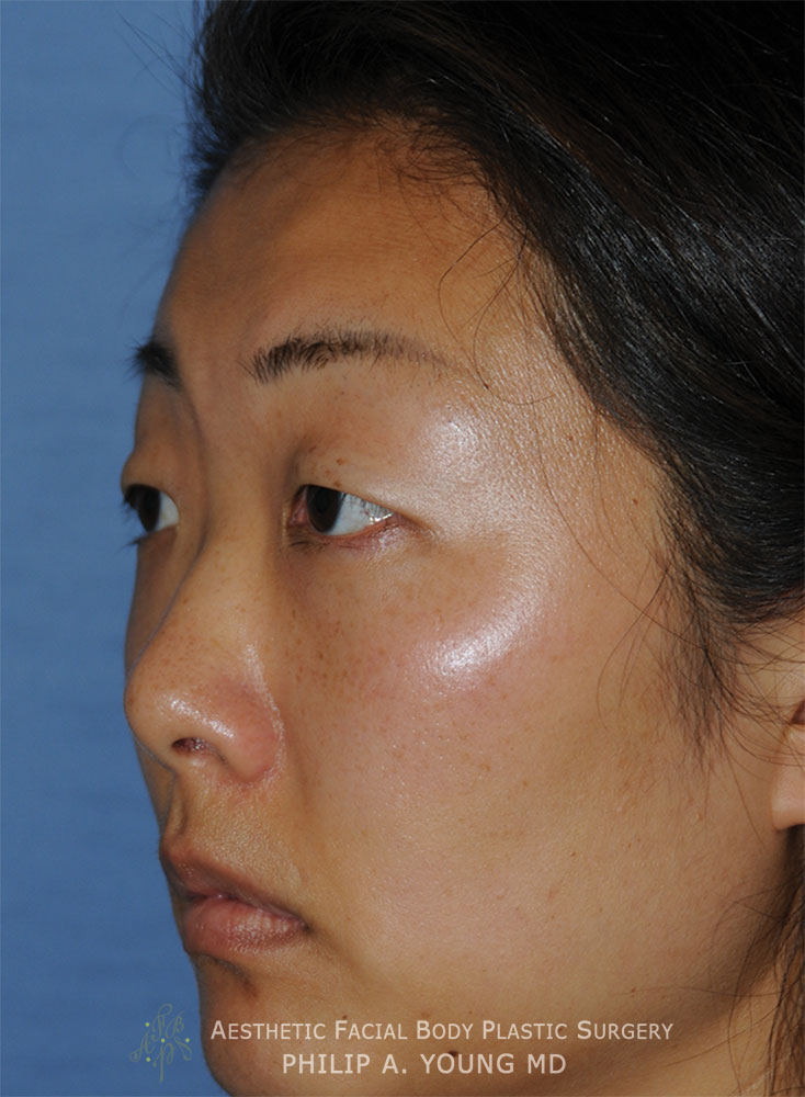 Before Asian Double Eyelid Crease Formation Surgery Left Oblique View