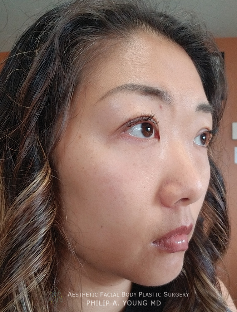 After Asian Double Eyelid Crease Formation Surgery Right Oblique View