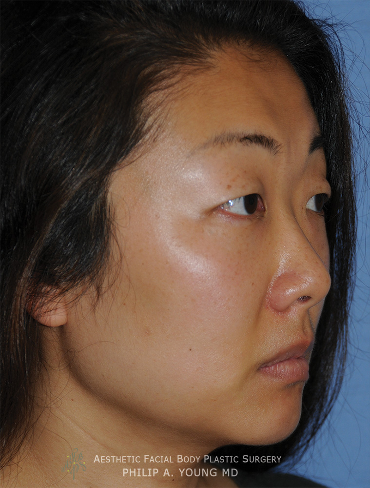 Before Asian Double Eyelid Crease Formation Surgery Right Oblique View