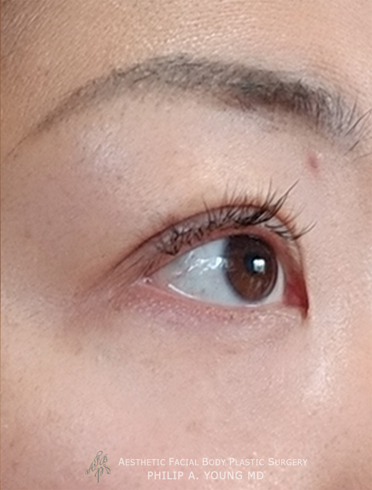 After Asian Double Eyelid Crease Formation Surgery Right Oblique View Close Up