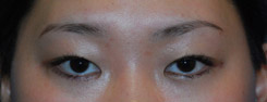 Asian Plastic Surgery Eyelid Before