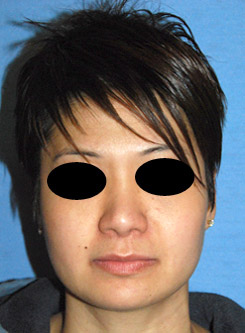 Asian Plastic Surgery Rhinoplasty After