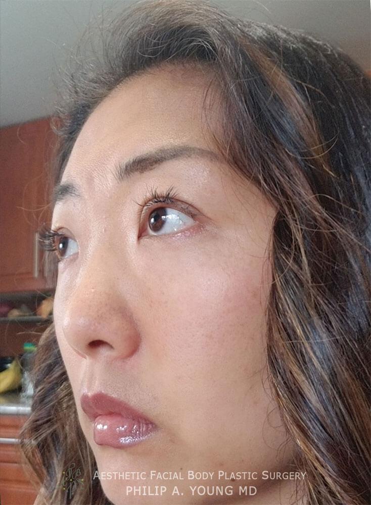Asian Eyelid Surgery - Orbicularis Levator Fixation