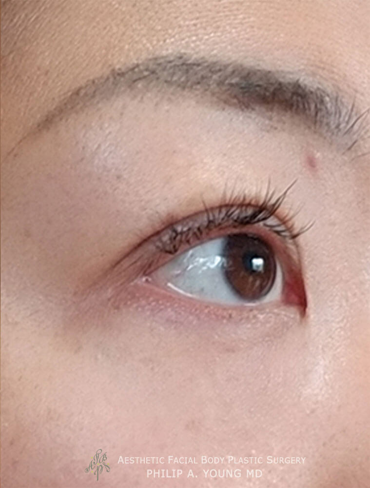 Asian Eyelid Surgery - Orbicularis Levator Fixation