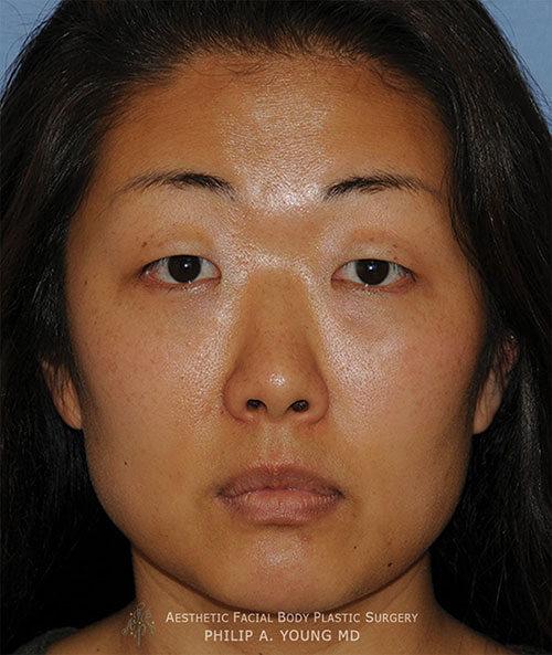 Asian Double Eyelid Crease Procedure Seattle Bellevue