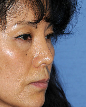 Rhinoplasty Revision surgery After Photo from Dr Philip Young in Bellevue Washington
