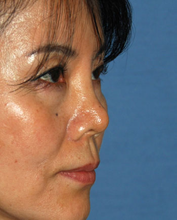 Rhinoplasty Revision surgery Before Photo from Dr Philip Young in Bellevue Washington