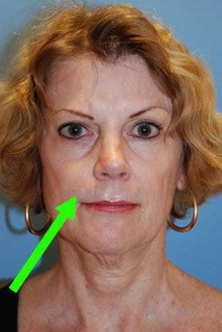 nasolabial folds treatment picture diagram