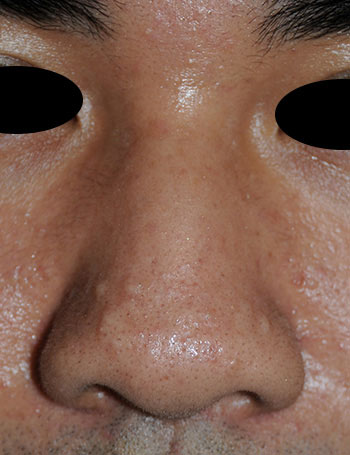 Nose laser resurfacing & scar revision before photo from Dr Philip Young in Beleveu Washington