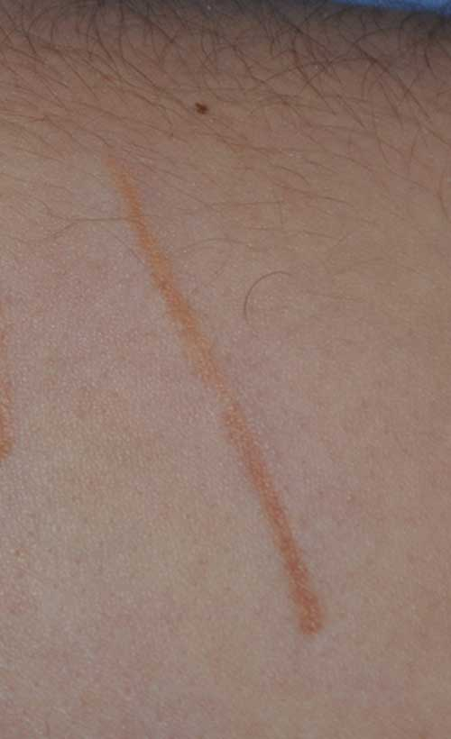 Scar Treatment For Self Induced Scars On The Arms Seattle Bellevue