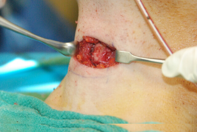 Tracheal Shave Picture in Surgery