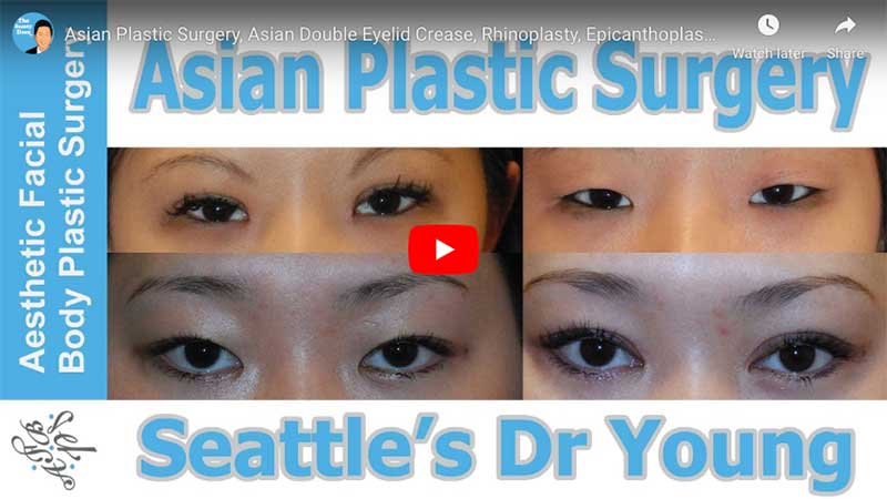 Asian Plastic Surgery, Asian Double Eyelid Crease, Rhinoplasty, Epicanthoplasty Seattle Bellevue