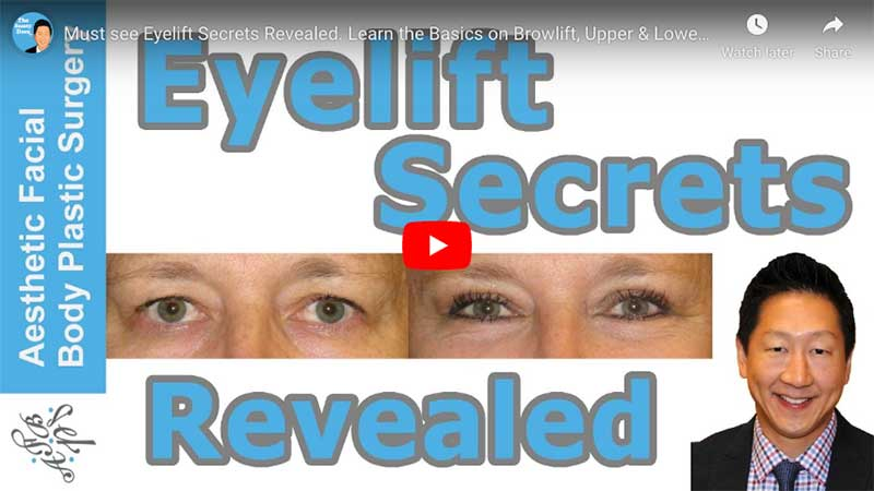 Must see Eyelift Secrets Revealed. Learn the Basics on Browlift, Upper & Lower Eye Lift, Seattle
