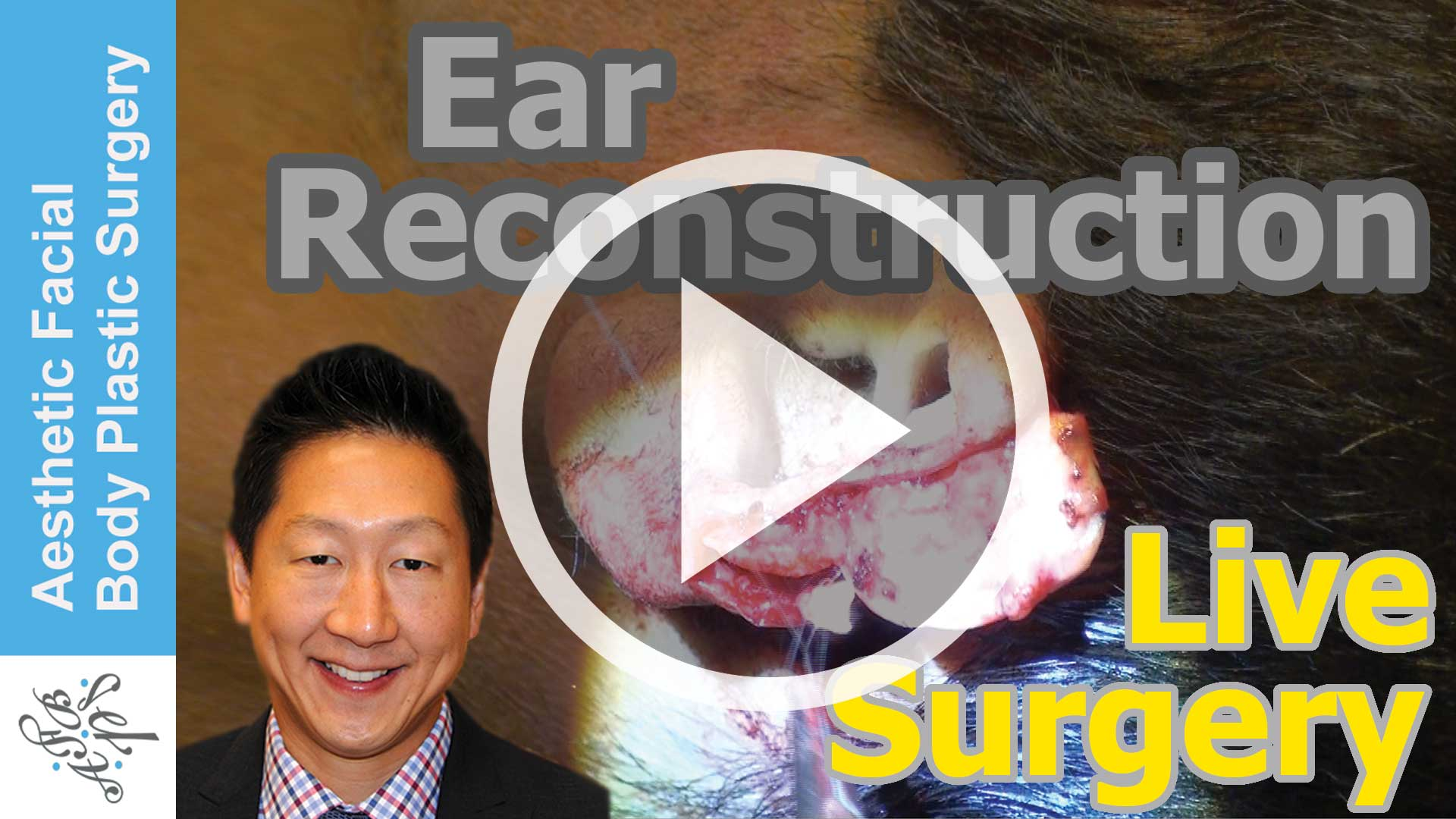 Ear Reconstruction Live Surgery of a Bite Injury of the Top of the Ear by Bellevue Seattle Dr Young