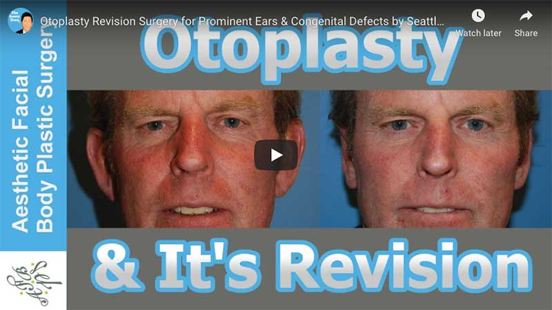 Otoplasty Revision Surgery for Prominent Ears & Congenital Defects by Seattle Bellevue's Dr Young