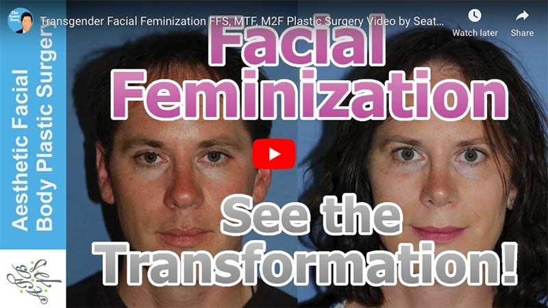 Facial Feminization Seattle Bellevue
