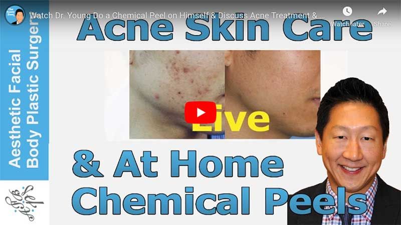 Watch Dr. Young Do a Chemical Peel on Himself & Discuss Acne Treatment & At Home Glycolic Peels