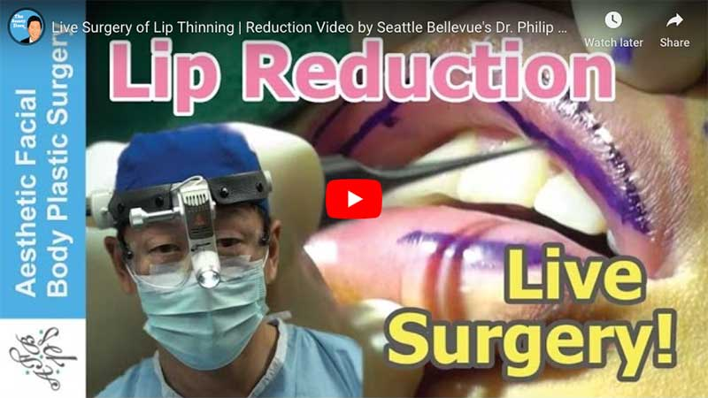 Live Surgery of Lip Thinning | Reduction Video by Seattle Bellevue's Dr. Philip Young