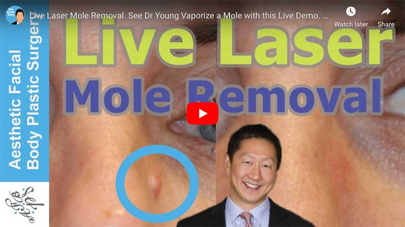 Live Laser Mole Removal. See Dr Young Vaporize a Mole with this Live Demo. Learn About Mole Removal