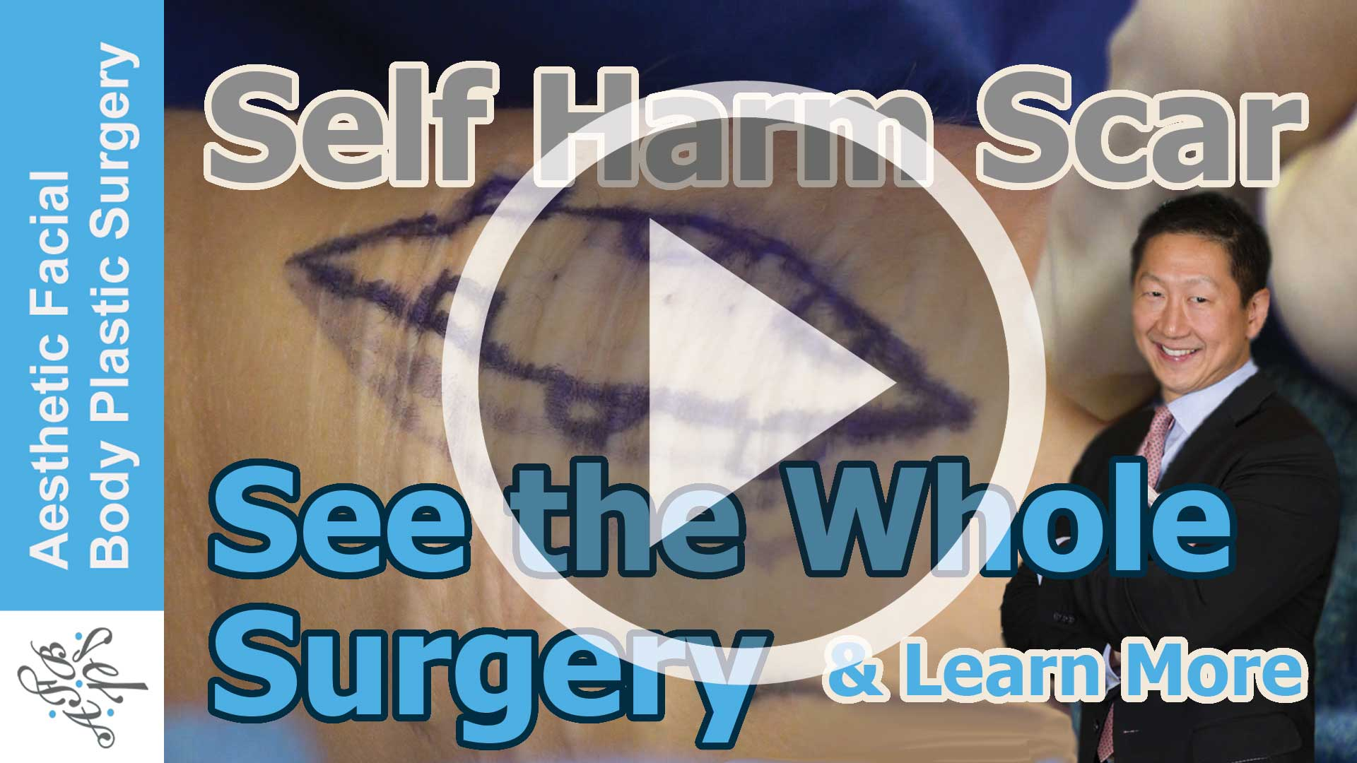 Self Harm Scar of the Arm with Live Video and Surgical Demonstration
