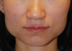 Botox® to Decrease the Prominence of the Angle of the Jaws