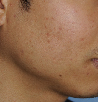 After Acne Topical Skin Care Regime to Treat Active Acne Breakouts after about one month of treatment