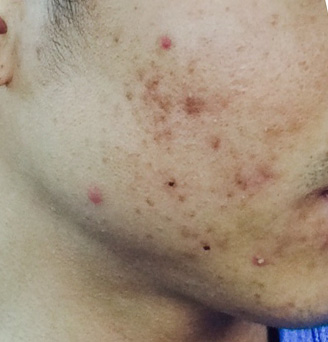 Acne Topical Skin Care Regime to Treat Active Acne