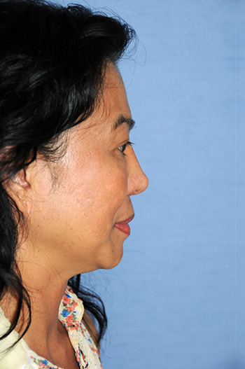 After Asian Revision Rhinoplasty with Diced Ear Cartilage Fascia Nasal Bridge Graft