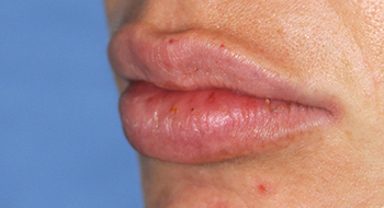 Lip Augmentation | Enhancement After Perma Lip Augmentation