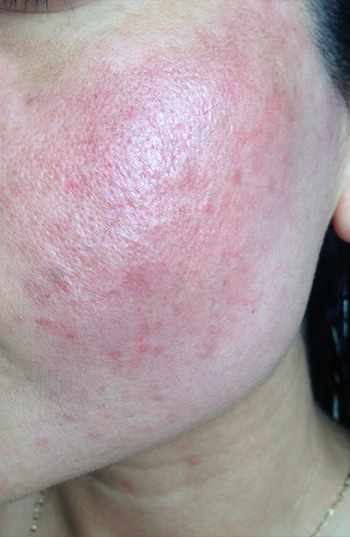 Acne Scar Vitalizer After Treatment