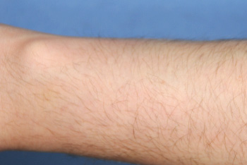 co2 Laser Removal of arm | Mole | Lesion after