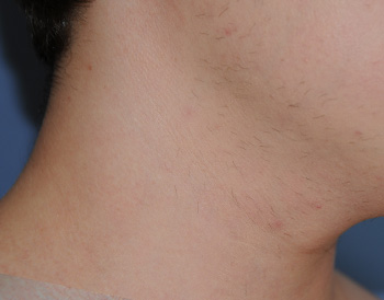 co2 Laser Removal of neck | Mole | Lesion after