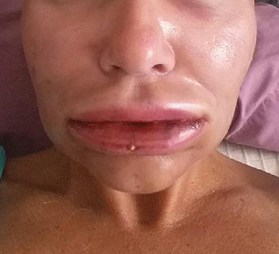 Lip Fat Injections Image Healing Diary