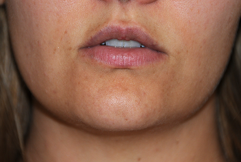 Before Silicone Perma Lip Augmentation