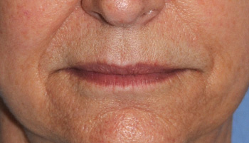 lip augmentation young vitalizer front view before