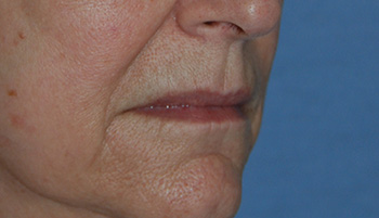 lip augmentation young vitalizer before