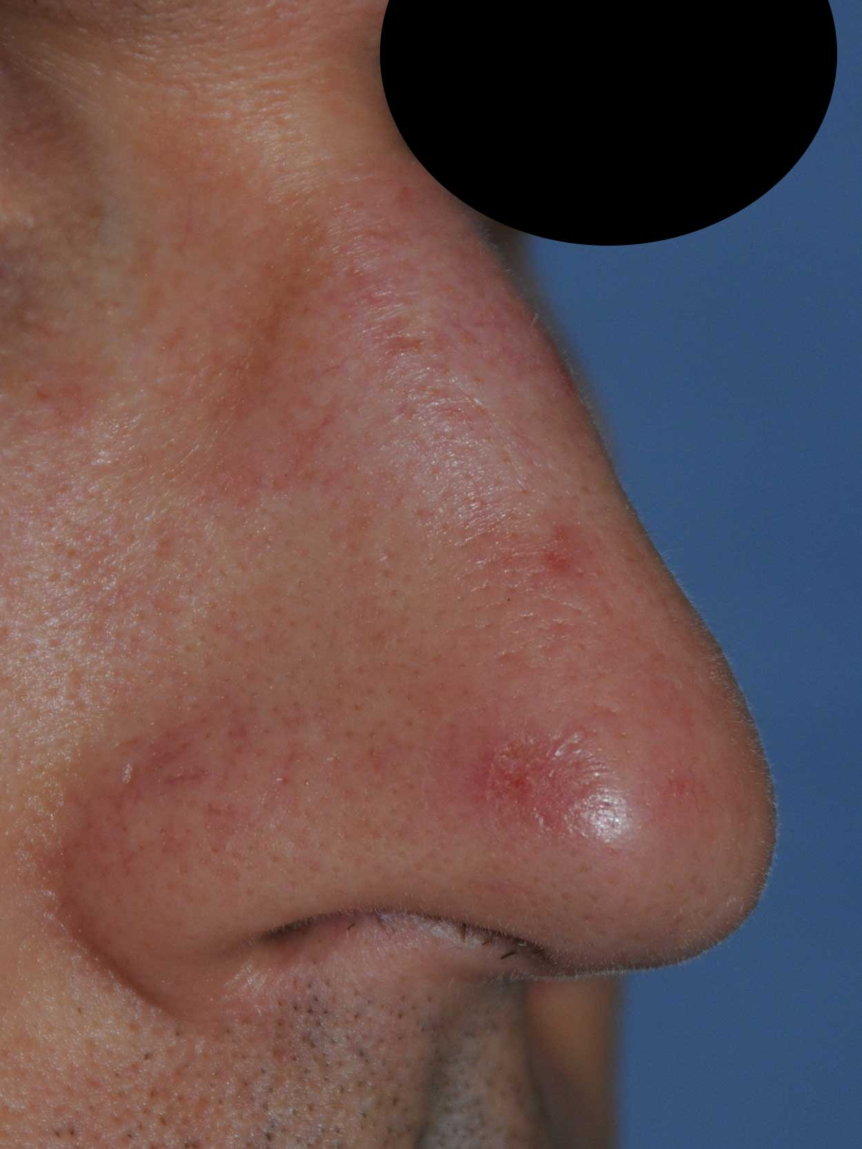 Oblique View Before Laser Resurfacing, Dermabrasion to the nose to treat scars, red marks, to improve texture, tone and even the skin appearance for this 40's Caucasian Professional Male from Bellevue, Wa