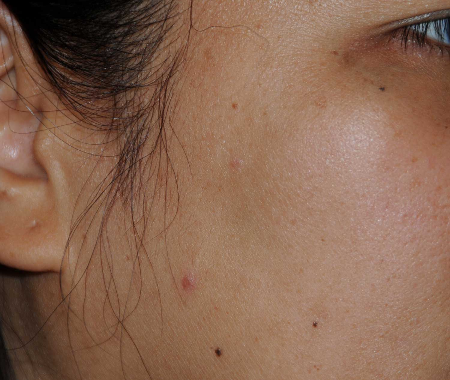 Birthmark Removal for this Middle Aged Professional Asian Female After View Image