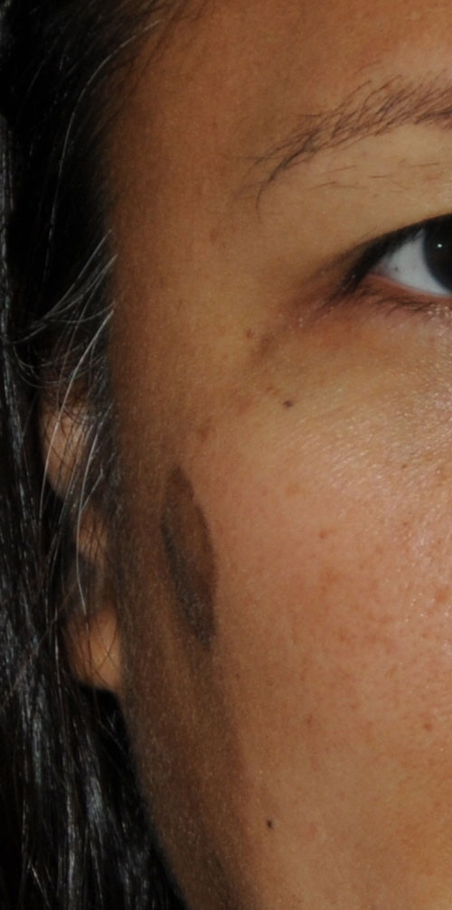 Birthmark Removal for this Middle Aged Professional Asian Female Before View Image