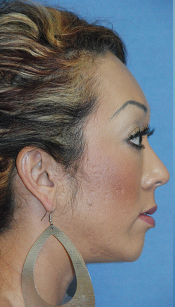 After Chin Implant for a Retruded, Small Chin and Filler Under the Eyelid and in the Cheek Region Side View