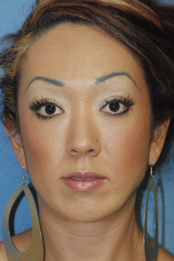 After Chin Implant for a Small Chin and Filler Injections Under the Eyelid For Hollow Lower Eyelids and Dark Circles